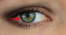 limbal ring visible in profile pic